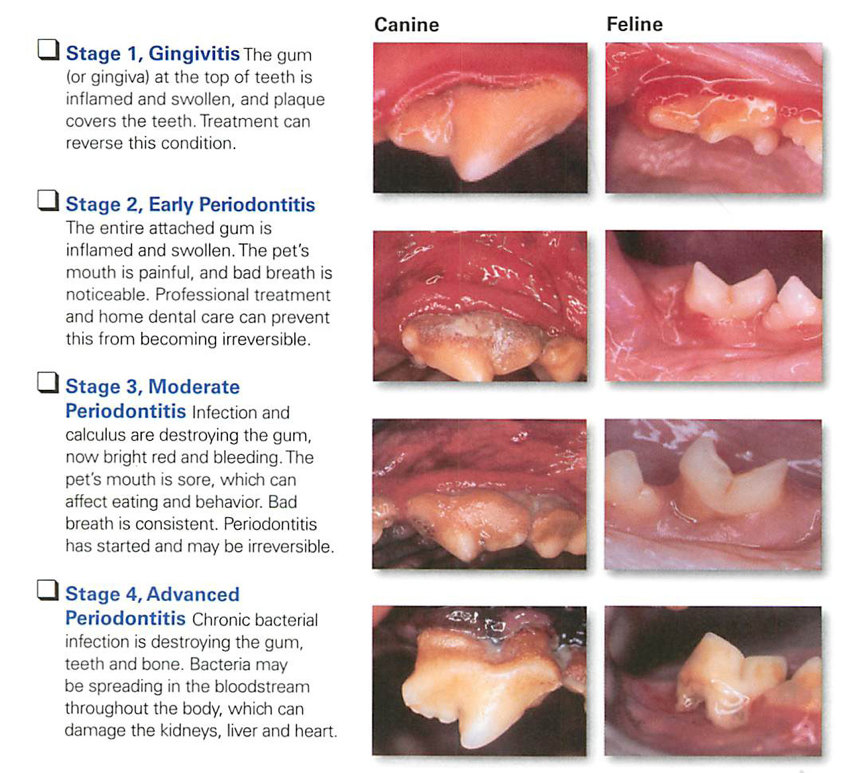 Chart of the four stages of dental disease